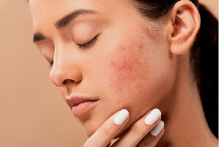 best acne skin care products